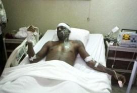 Haiti-accidente-carnaval_PREIMA20150218_0450_32