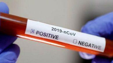 Photo of Inmunidad cruzada, ¿qué es y por qué puede ser clave contra el COVID-19?