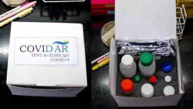 Photo of Cómo se utilizan los tests de coronavirus desarrollados en el país