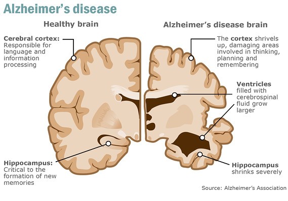 Image result for alzheimer