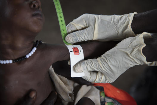An estimated 10.4 million children will suffer from acute malnutrition in 2021 – UNICEF