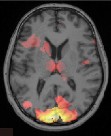 Reconditioning the brain to overcome fear