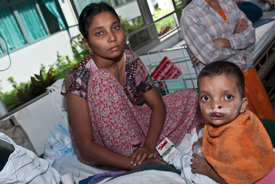 A mother with her child Operation Smile