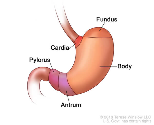 Changing U.S. Incidence of Lower Stomach Cancer - National ...