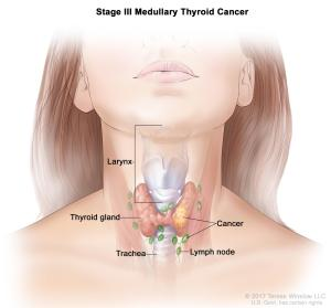 Thyroid Cancer Treatment (Adult) (PDQ®)–Patient Version  National Cancer Institute