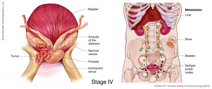 Stage IV Prostate Cancer