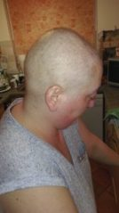 First Chemotherapy - FEC