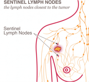 Sentinel Lymph Nodes