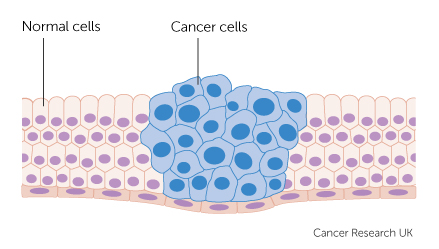 cancer cells growing diagram