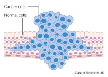 tumour forcing its way through normal tissue