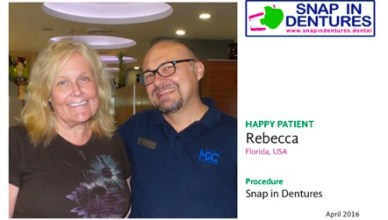 Snap in Dentures Cancun