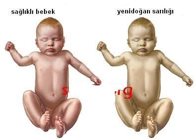 yeni-dogan-bebekler