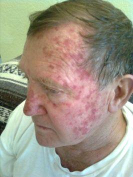 Ken with skin cancer