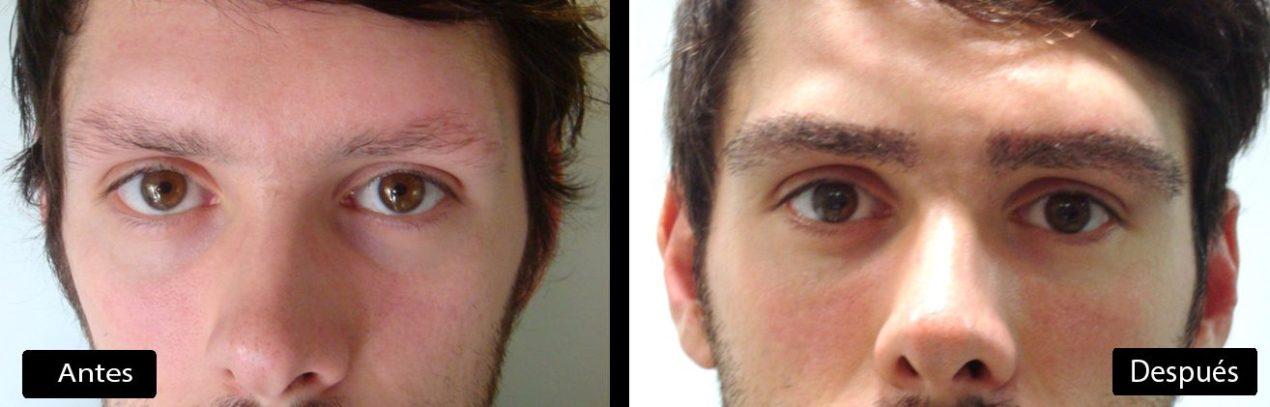 Implante de Cejas: La nueva tendencia entre hombres