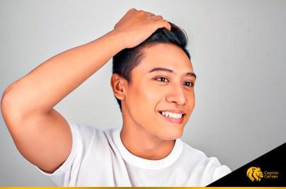 ¿Implante de cabello artificial o natural?