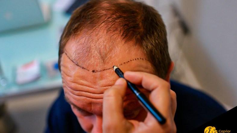 ¿Me puedo hacer un implante capilar sin rapar?