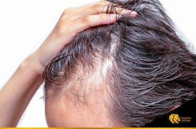 Sepa cómo diagnosticar la alopecia difusa