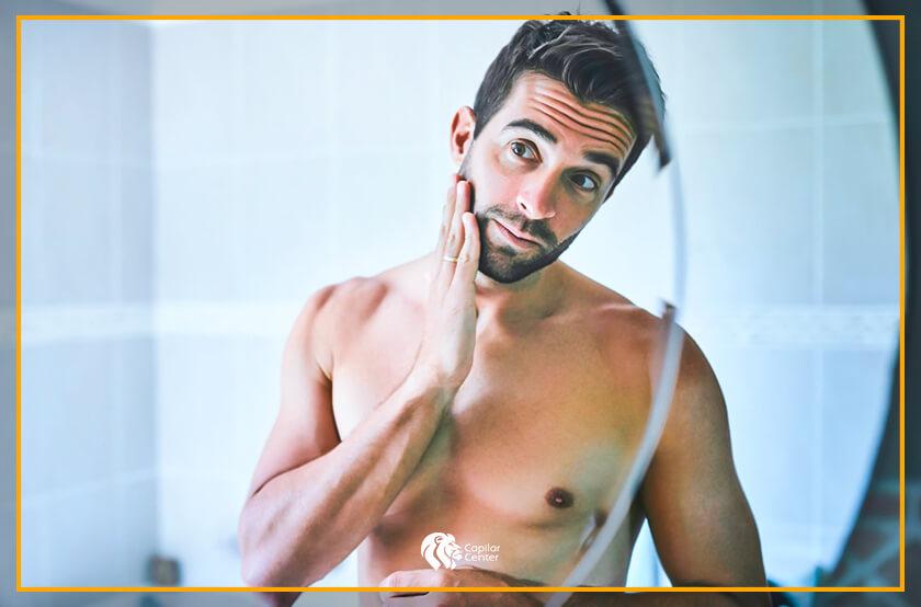 ¿El injerto de barba requiere cuidados?