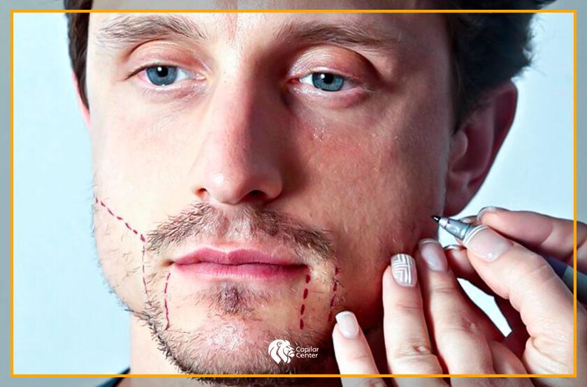 Y, ¿cómo se realiza el injerto de barba Perú?