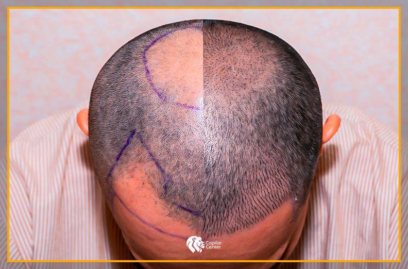 ¿El implante de cabello da resultados permanentes?
