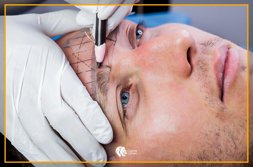 ¿El Implante de Cejas es la única solución?