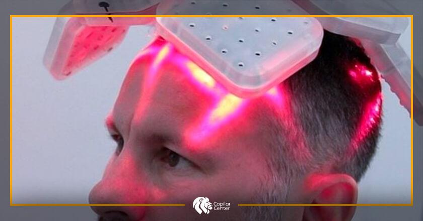 ¿Cómo es la fototerapia capilar?