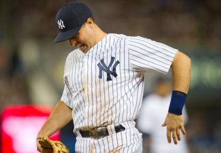If Mark Teixeira suffers another injury, it could leave the Yankees' lineup limp. (Photo: NY Daily News)