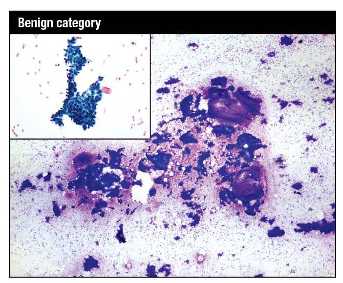 Modified Giemsa stain. Highly cellular smear showing fibroadenoma with mix of small and large hyperplastic ductal epithelial cell tissue fragments and large myxoid stromal fragments. High-power image shows myoepithelial nuclei on the epithelial fragments and in the background as bare bipolar nuclei. Inset: Modified Giemsa. Fragment of benign breast tissue consisting of ductal epithelial cells with interspersed myoepithelial cells.