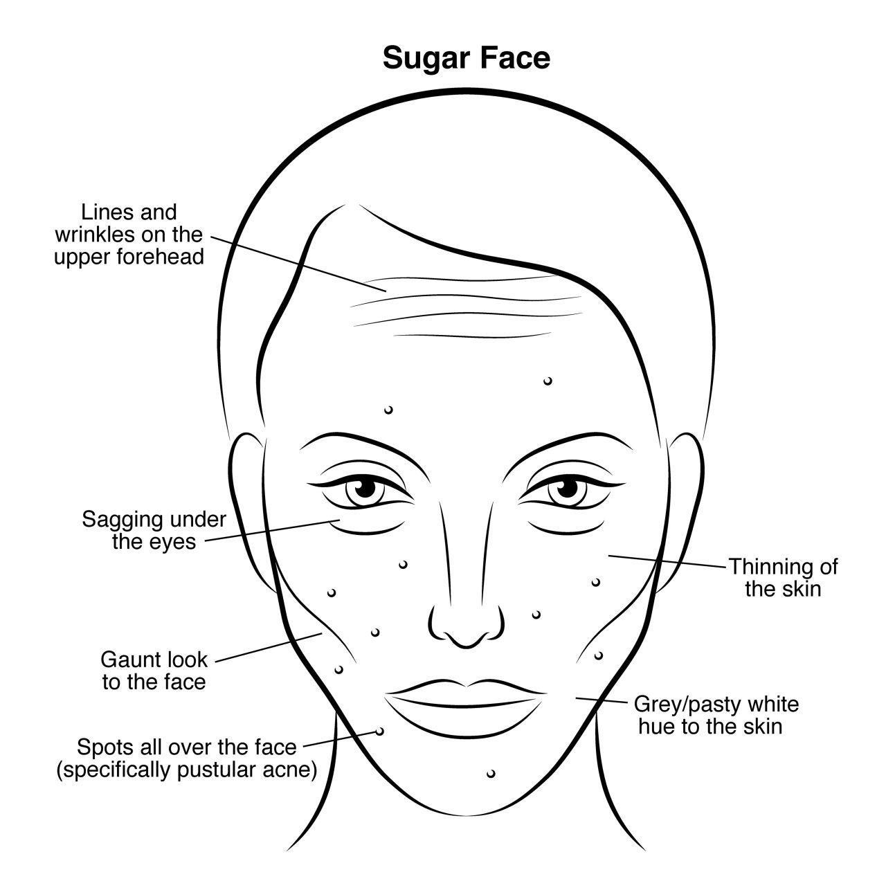Al Ver Tu Cara Puedes Saber Que Debes Consumir Menos