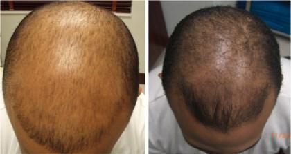 Carboxiterapia para la alopecia