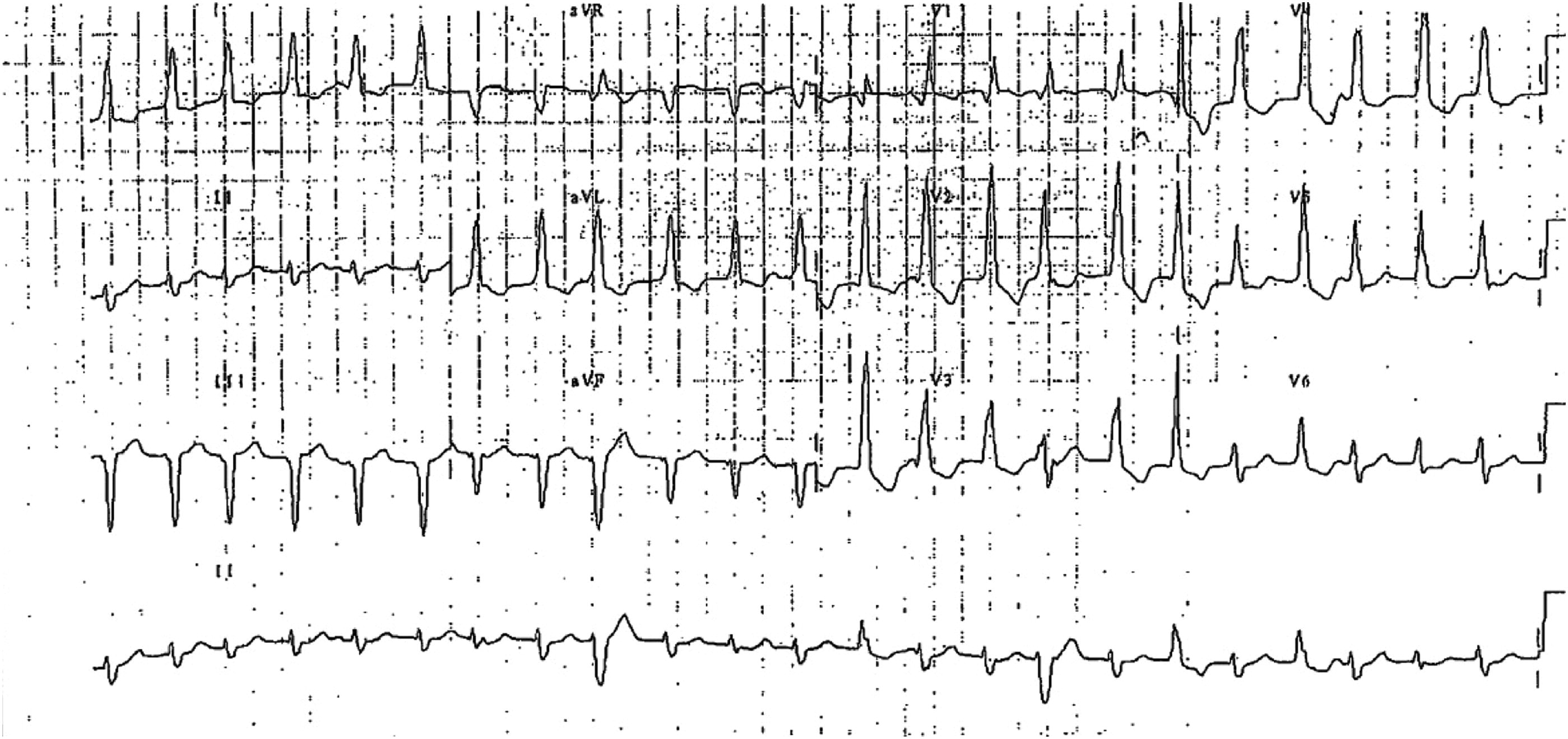 New Irregular Rhythm In A Patient With Baseline Left Bundle Branch Block