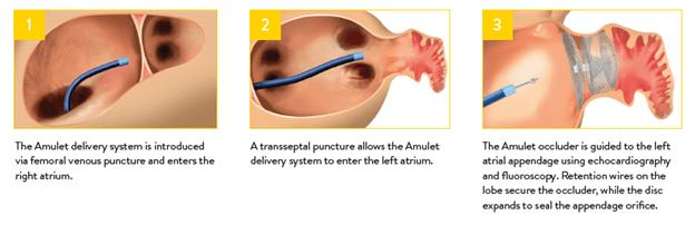 New Treatment for Atrial Fibrillation