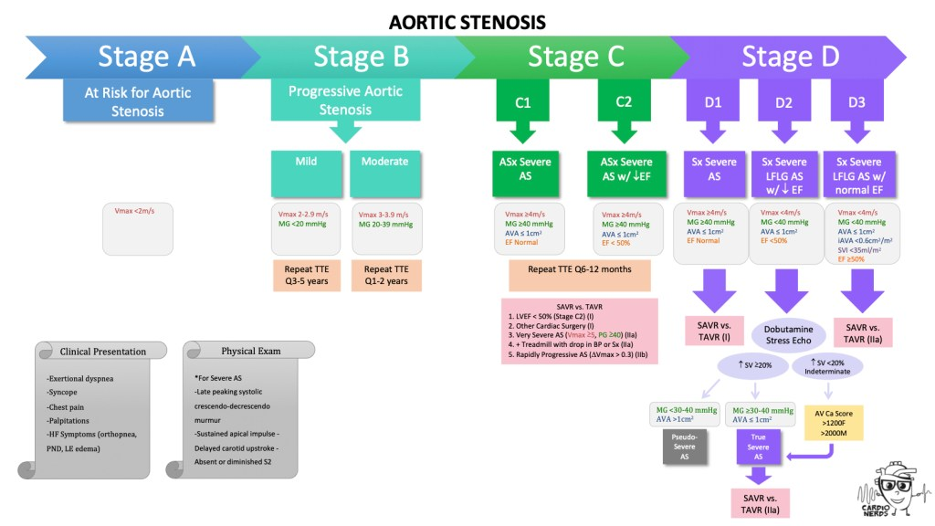 Aortic stenosis diagnosis and treatment by the Cardionerds Cardiology Podcast