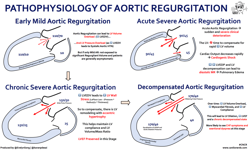 Pathophysiology of Aortic Regurgitation - Cardionerds