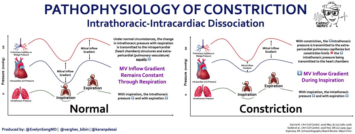 Constriction Pathophysiology