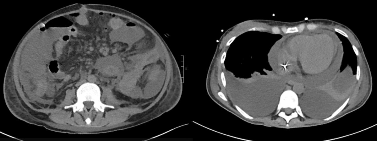 Histoplasmosis Pericarditis