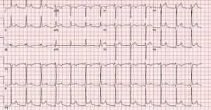 CardioNerds ECG Challenge #6