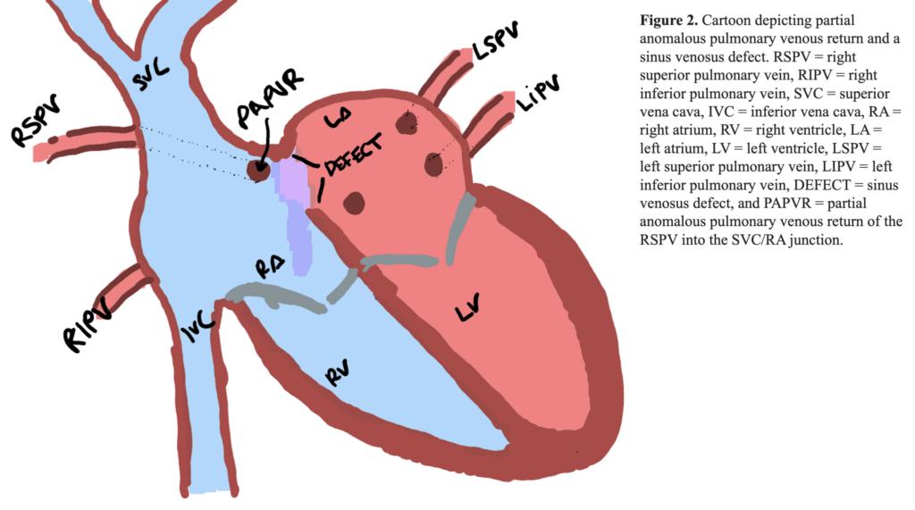 Figure 2. Partial anomalous pulmonary venous return and a sinus venosus defect