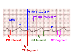 Segments and intervals in an electrocardiogram