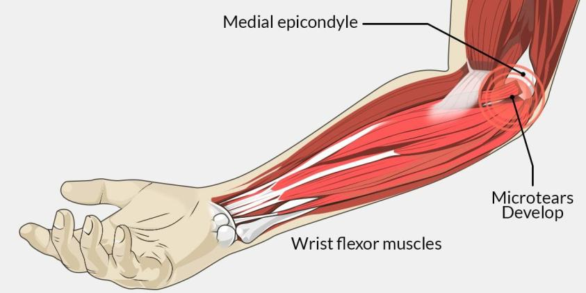 Suffering from Golfer's Elbow, are you? Then ...