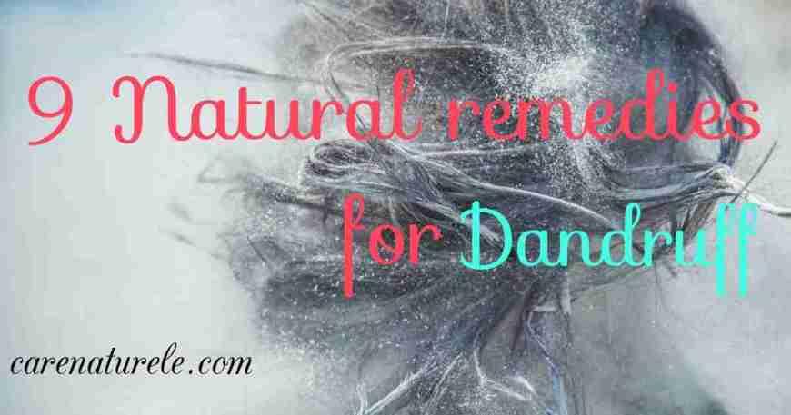 Natural dandruff remedies