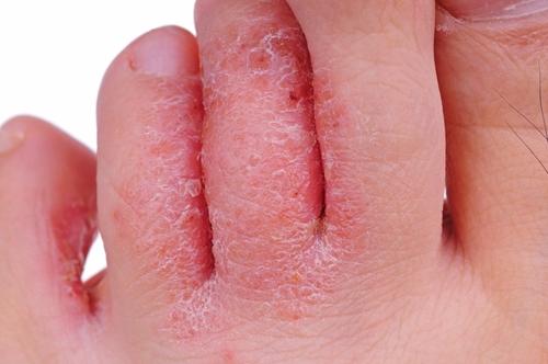 When does a simple rash turn into a big problem?