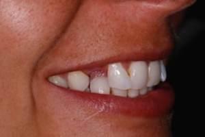 Dental Bonding, denture changed to a bridge before