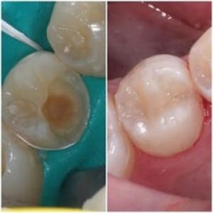 Dental Bonding, White filling before and after