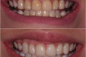 Badly worn teeth after dental bonding