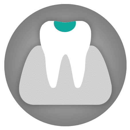 Dental Treatments: Tooth Fillings