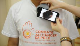exame cancer de pele