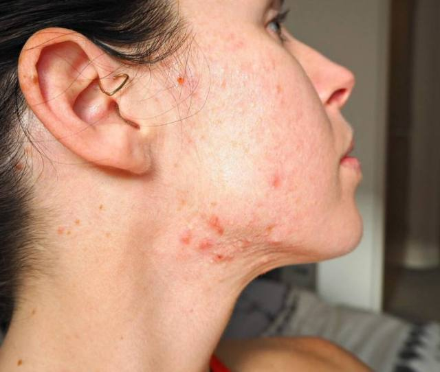 Accutane Acne Treatment Before After