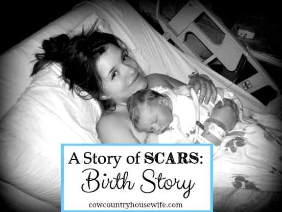 A Story of Scars Birth Story - Cow Country Housewife