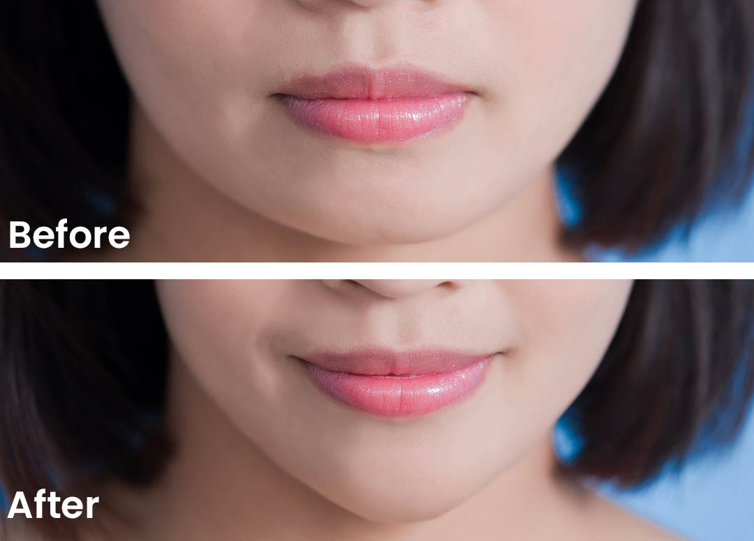 Strengthen your Jawline with Fillers & Botox - Dr. Carolyn Mai Honolulu  Botox & Filler Specialists